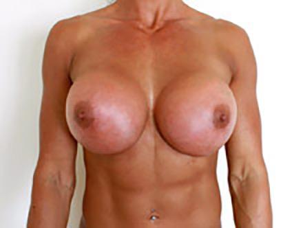 Cindy landolt naked